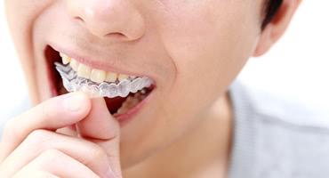 方法 歯ぎしり 治す